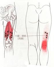 大腿二頭筋2.jpg