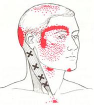 胸鎖乳突筋.png